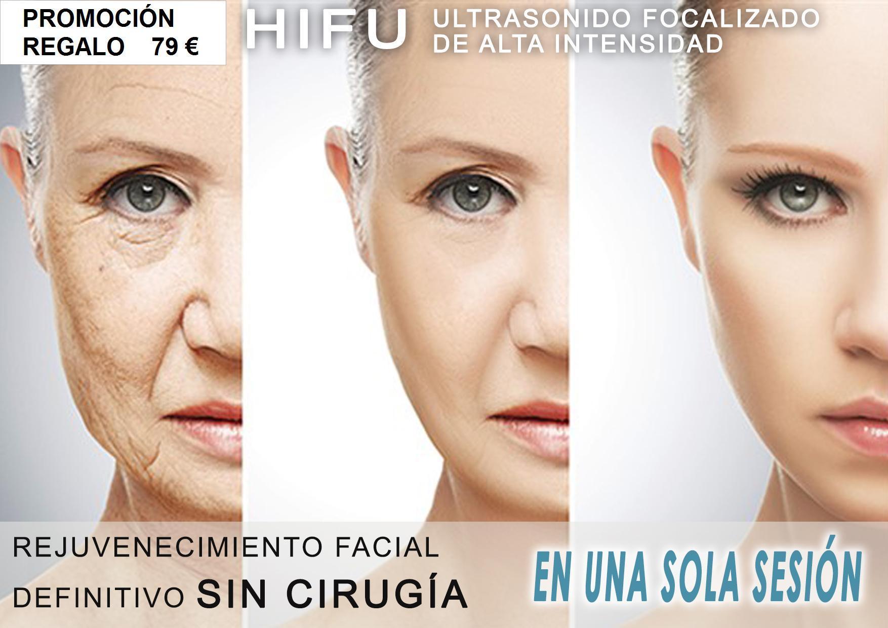 SESIÓN HIFU FACIAL
