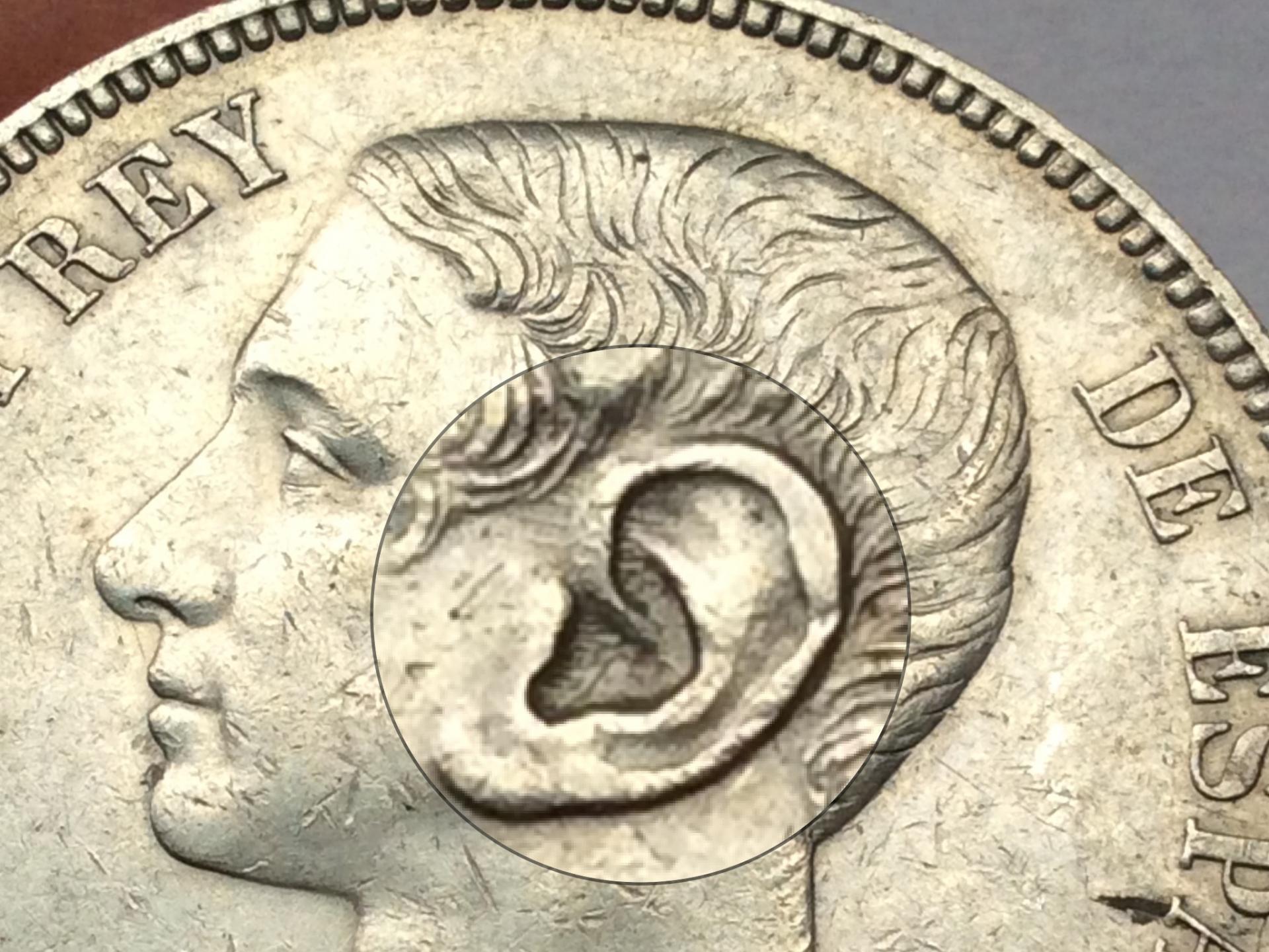 5 PESETAS 1875 *18*75 - ALFONSO XII - VARIANTE OREJA RAYADA