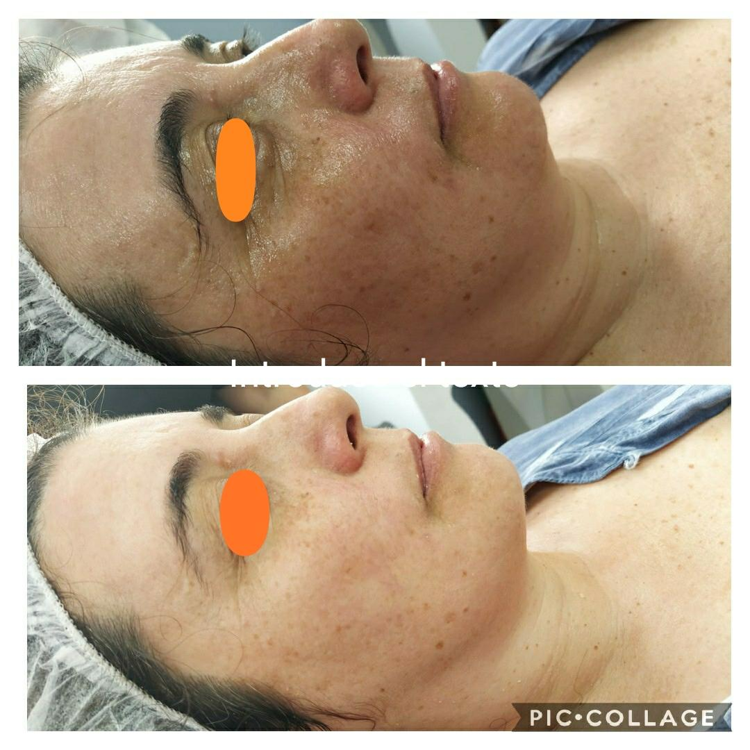 Tratamiento Revital C (vitamina C)